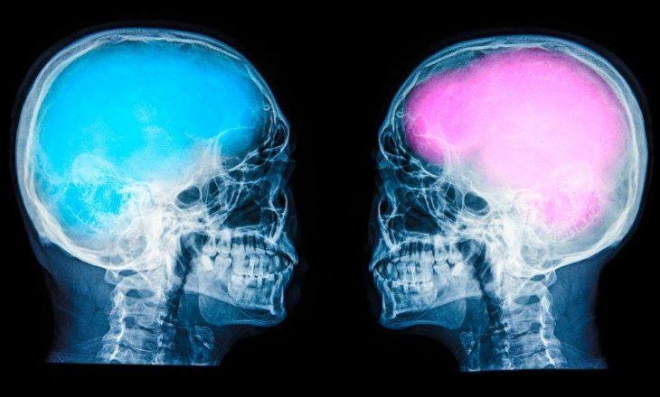 Studim: Nuk ka dallim mes trurit të mashkullit dhe femrës