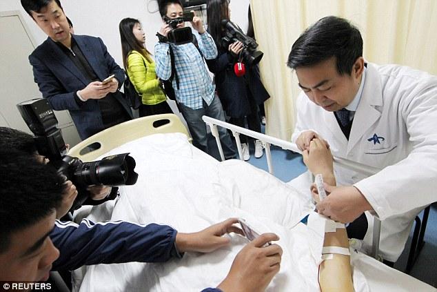 Mjekët kinezë rrisin veshin brenda një krahu të një pacienti
