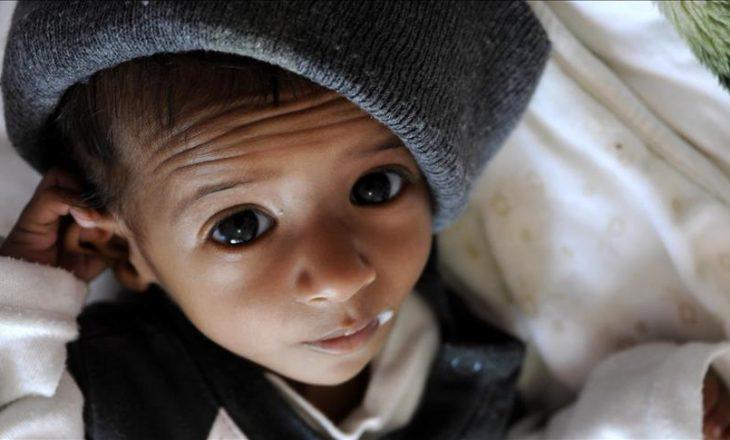 Epidemia e kolerës në Jemen shkakton mbi dy mijë të vdekur