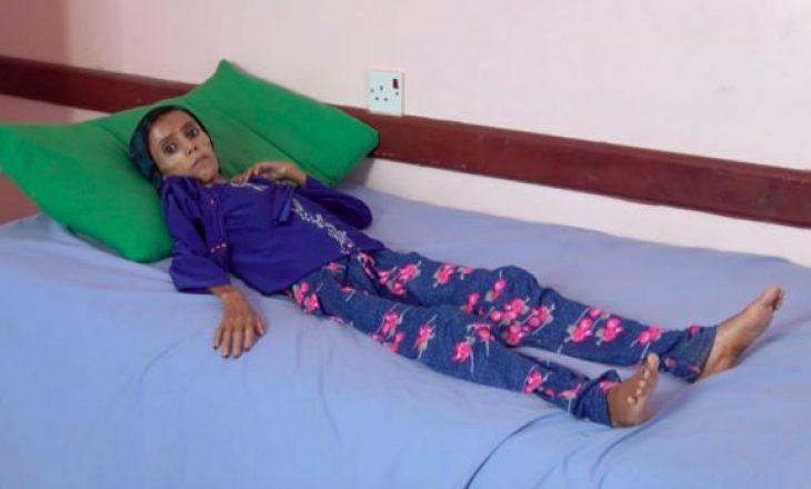 12-vjeçarja që peshon 10 kg, pasqyra e tmerrit nga lufta në Jemen