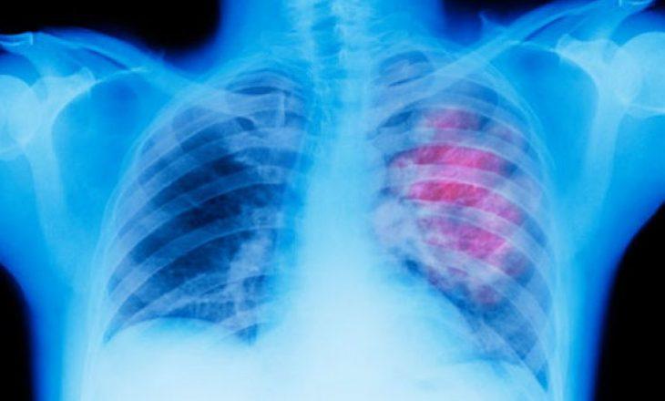 Hulumtuesit thonë se kanë gjetur një rrugë tjetër për ta zbuluar kancerin në mushkri