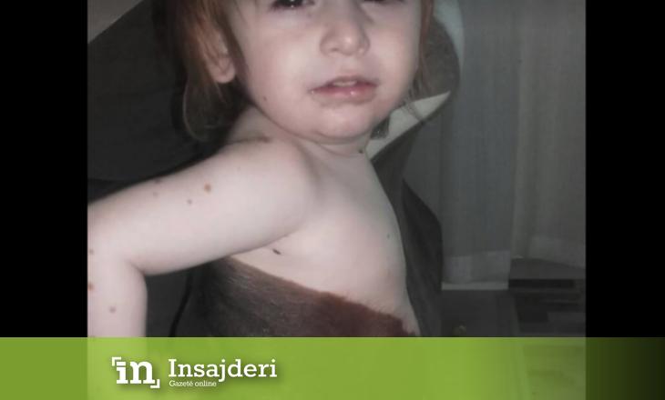 Vogëlushja nga Skenderaj vuan nga një sëmundje komplekse – Ka nevojë për ndihmën tuaj
