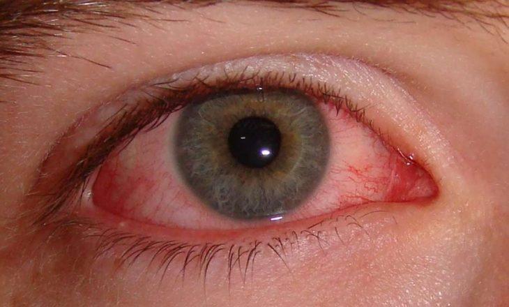 Instituti i Shëndetit Publik paralajmëron qytetarët për virusin e gripit të syrit