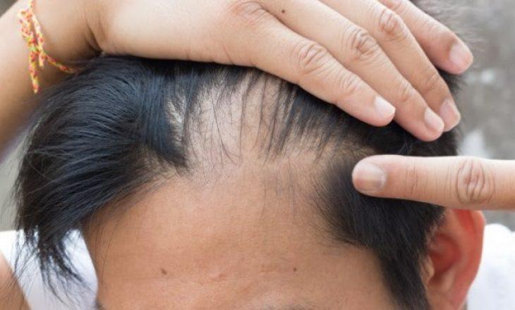 Shkencëtarët zgjedhin problemin e rënies së flokëve