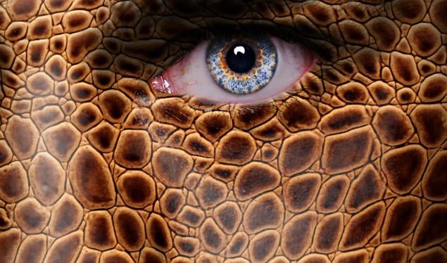 njeriu-gjarper-nuk-i-ndale-operacionet-vazhdon-me-pjese-tjera-te-trupit