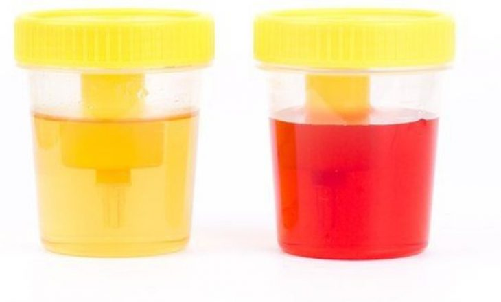 Çfarë tregon prezenca e gjakut në urinë? Bëhuni vigjilentë ndaj këtyre shenjave