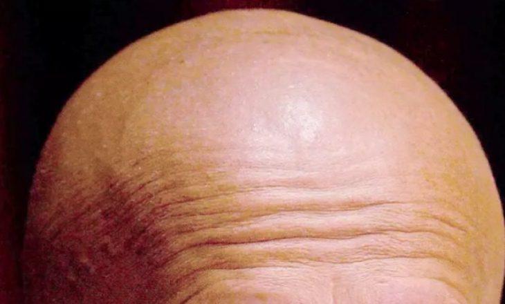 Personat që punojnë më gjatë janë dyfish më të rrezikuar nga rënia e flokëve