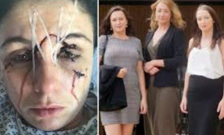 Tri motrat shpërfytyrojnë kamerieren, e masakrojnë me shishe kokës