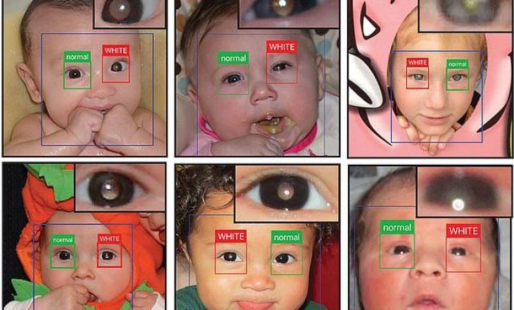 Aplikacioni në telefon që mund të diagnostikojë kancerin e syve