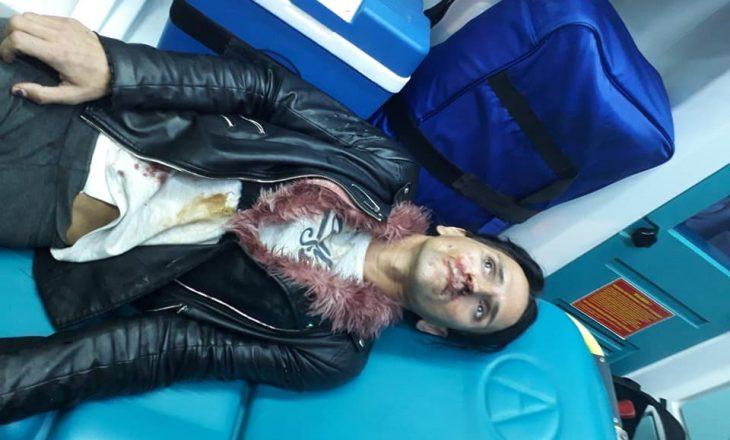 Pamje të rënda, sulmohet pjesëtarja e komunitetit LGBTI në rrugët e Tiranës