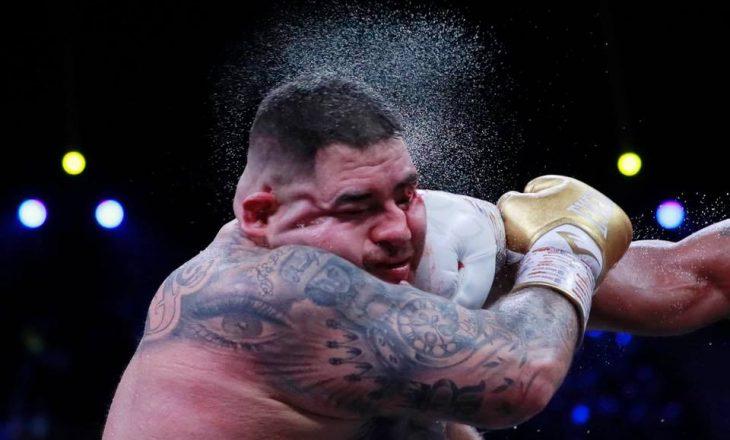 Ruiz në gjendje shokuese pas meçit ndaj Joshuas