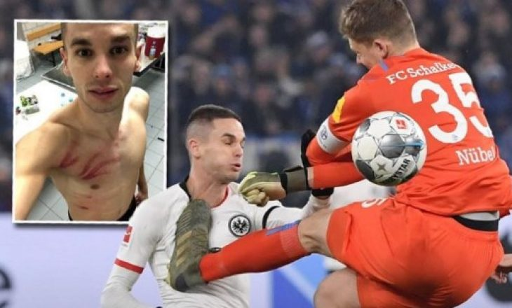 """Ndërhyrja """"horror"""" e portierit të Schalkes, i shkakton lëndime serioze futbollistit serb"""