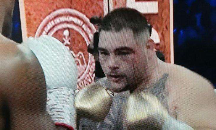 Joshua e nis frikshëm, Andy Ruiz pëson çarje (FOTO)