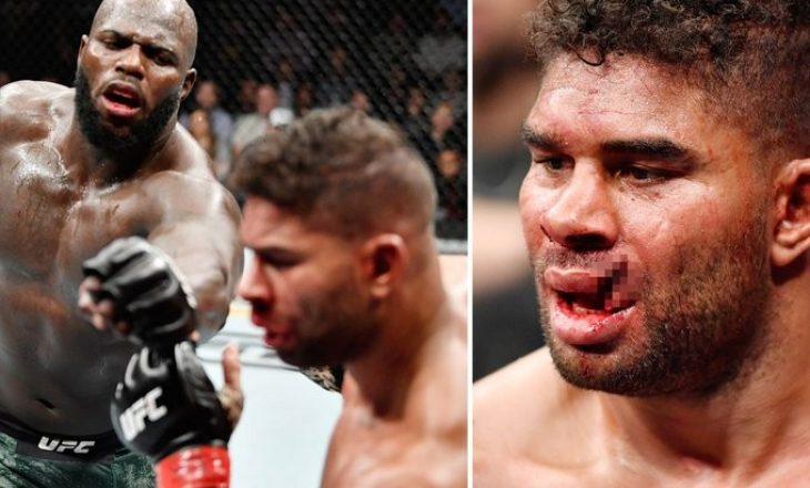 """KO brutale në UFC, i shkakton lëndim """"horror"""" kundërshtarit – pamje"""