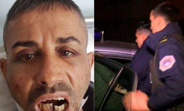 Kallëzimi penal ndaj tre policëve dhe tmerri që përjetuan dy qytetarët që festuan fitoren e Vetëvendosjes