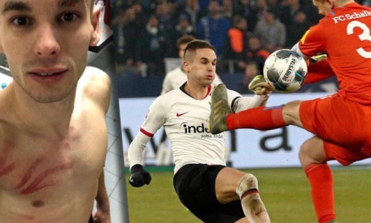 Bëri ndërhyrje horror ndaj sulmuesit, portieri i Schalkes pezullohet 4 ndeshje