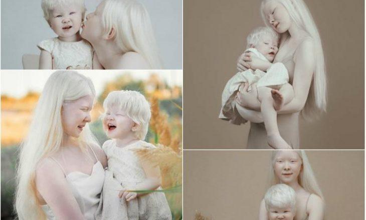 Set i veçantë fotografik, motrat me sindromën e rrallë publikojnë fotot e mrekullueshme