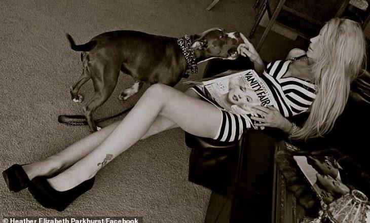 Pamje të frikshme – Modelja e njohur sulmohet nga dy qen Pitbullë