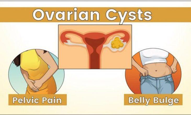 I keni këto simptoma, shkoni menjëherë tek gjinekologu