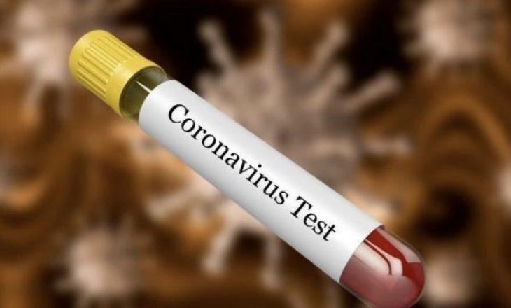 Edhe tetë raste të reja me Koronavirus, shkon në 79 numri i të prekurve