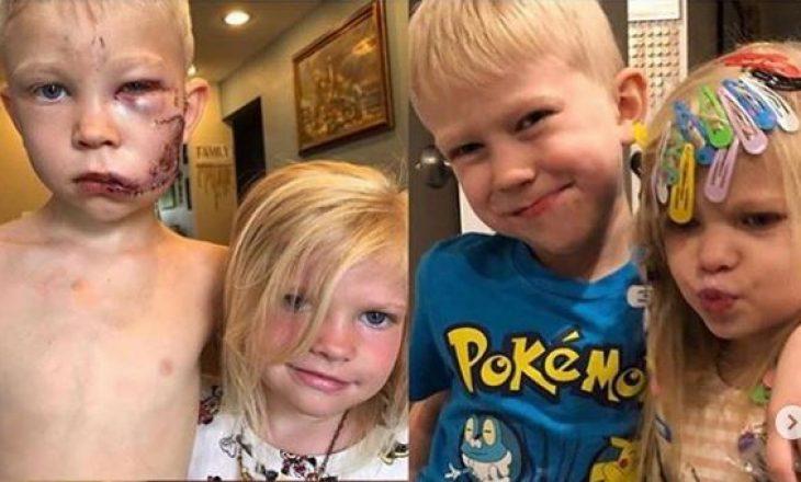 Djaloshi 6 vjeçar shpëton motrën e vogël, bie viktimë e sulmit të egër të qenit