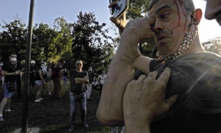 Eurodeputetët dënojnë dhunën në Beograd