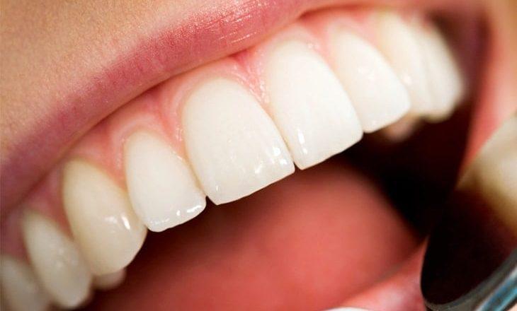Ushqimet më të mira për shëndetin e dhëmbëve