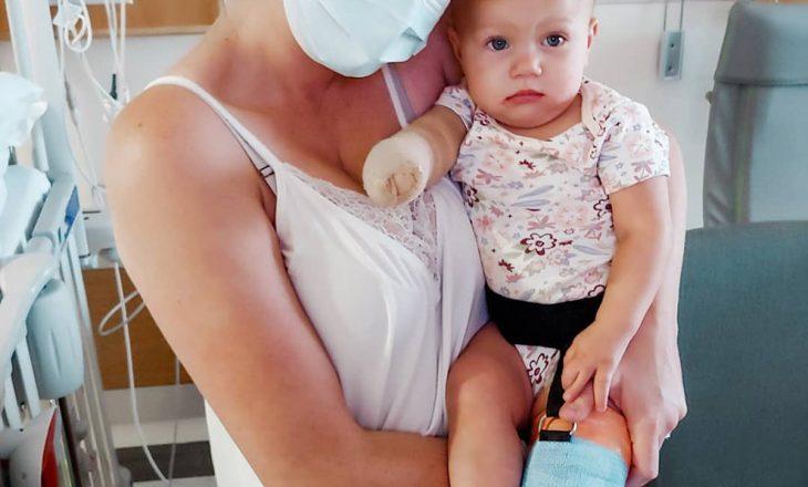 """Maddie Brown Brush për amputimin e këmbës së vajzës 1-vjeçare: """"Nuk ishte vendim i lehtë"""""""