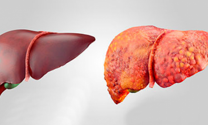 Ushqimet kryesore për shëndetin e mëlçisë që do të ju ndihmojnë të përmirësoni shëndetin e të rrisni jetëgjatësinë