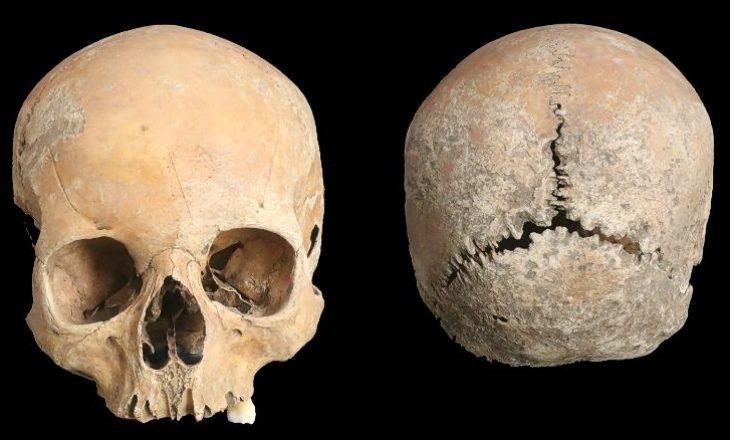 Një gjetje arkeologjike na tregon më shumë për ndëshkimet brutale në Anglinë mesjetare