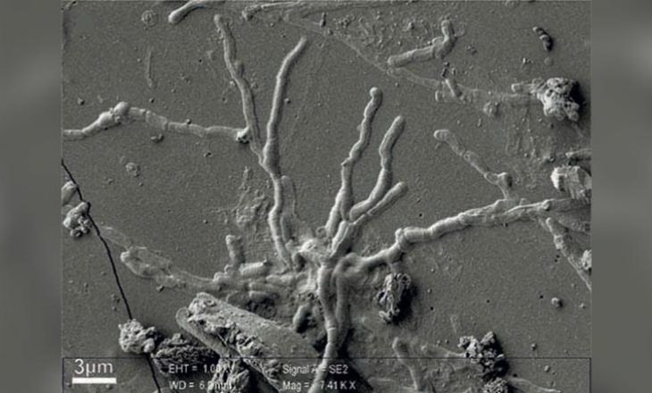 Shkencëtarët gjejnë qeliza të paprekura të trurit në viktimën e shpërthimit të Vezuvit