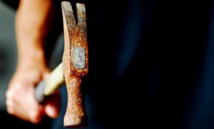 Prishtinë: Një 23-vjeçar goditet me çekan