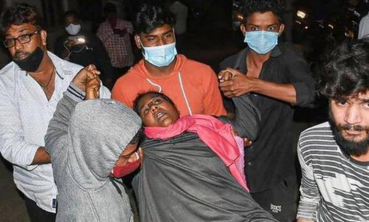 Sëmundja misterioze në Indi lë një të vdekur dhe qindra persona të shruar në spital