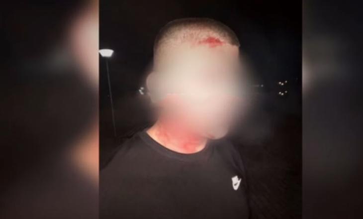 Flet 19-vjeçari që u rrah nga Policia në Mitrovicë për shkelje të orës policore