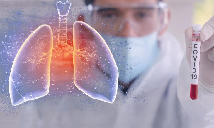 Studimi: COVID-19 dëmton mushkëritë më shumë sesa pirja e duhanit