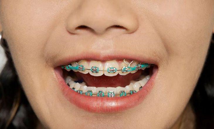 Për çfarë shërbejnë elastikët (shiritat e gomës) për protezat e dhëmbëve?