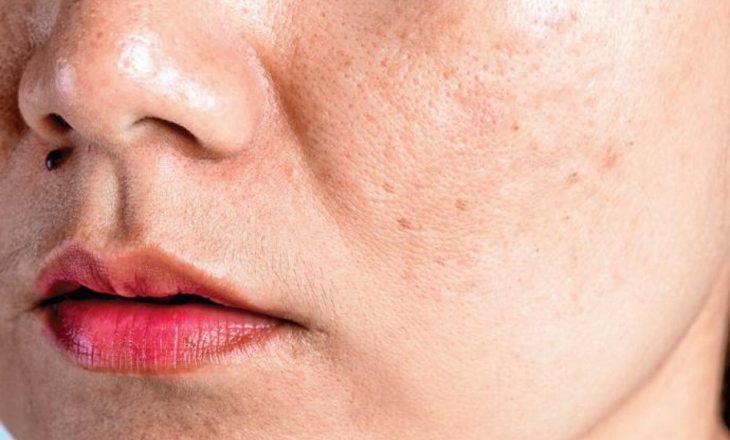 Çka shkakton pigmentimin e lëkurës?