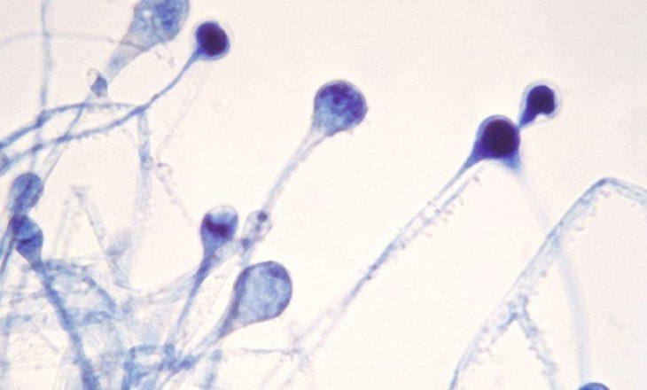 """India me afër 9,000 raste të sëmundjes """"kërpudhat e zeza"""", pritet të shpallet epidemi"""